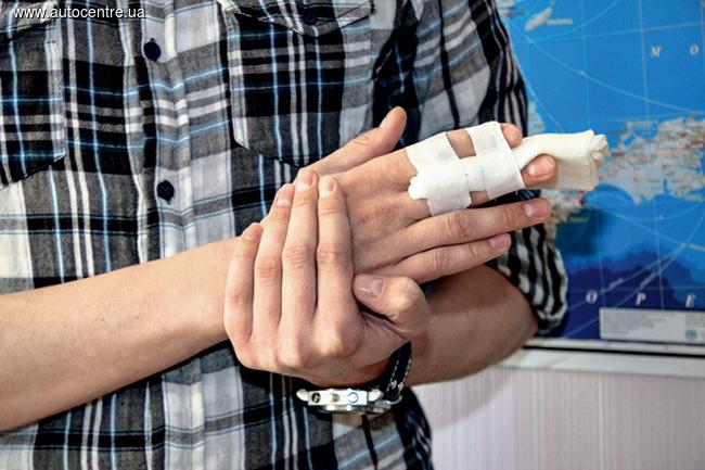 Оказание помощи при переломе