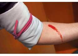 Жгут накладывают на конечность выше места кровотечения, как можно ближе к ране,