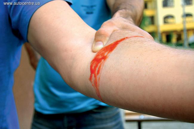 Остановка кровотечений при ДТП
